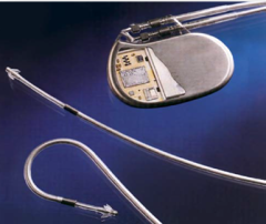 Picture of a cardiac pacemaker