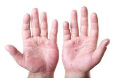 Zwei Handflächen mit Hautekzemen