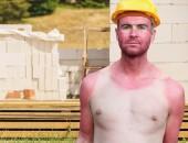 Mitarbeiter mit Sonnenbrand am Oberkörper