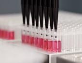 Protein Calretinin kann bei Krebsfrüherkennung helfen